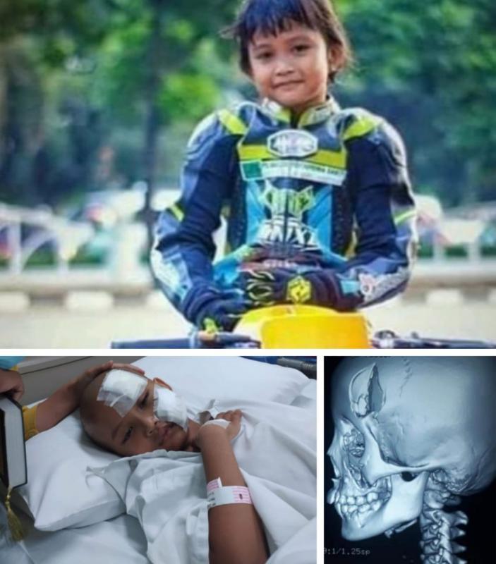 Adinda Rinjani di atas motor MiniGP, tengkorak kepala yang retak dan jelang operasi di RS Mitra Keluarga Bekasi. (kolase)