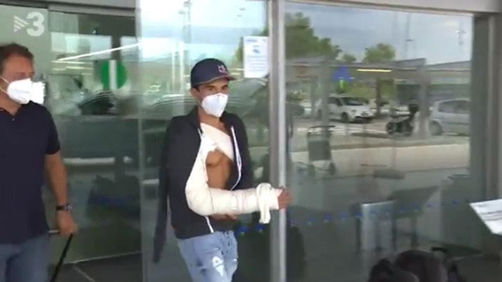 Patah tulang tangan Marc Marquez yang haruskan 3 kali operasi dalam 5 bulan. (Foto: marca)
